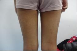 女性牛皮癣患者主要有哪些危害