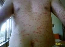 红皮病型银屑病有哪些并发症