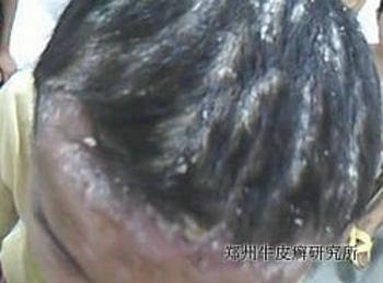 头部牛皮癣有哪些治疗方法