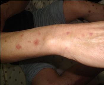 银屑病与皮炎的三种区别